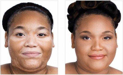 Obat Untuk Penyakit Vitiligo